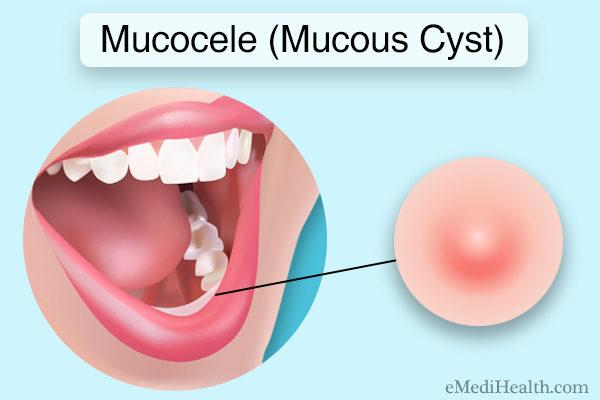 Mucocele (mucous cyst)