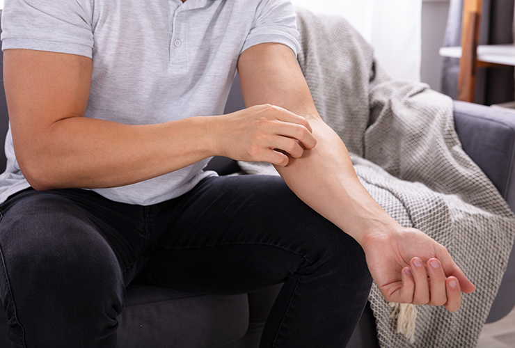 Itchy Skin: Treatment and Home Remedies for Relief