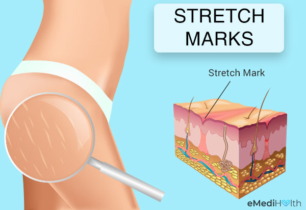 How To Get Rid Of Stretch Marks Treatment And Prevention