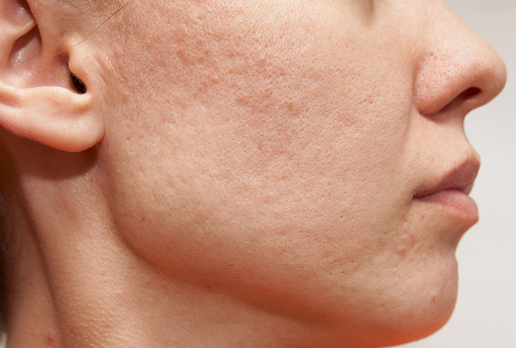 What Causes Blemishes and How to Get Rid of Them