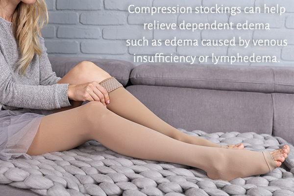 can compression stockings relieve edema?