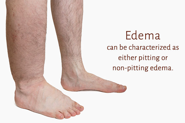 different stages of edema