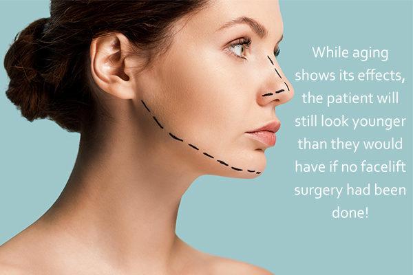 is plastic surgery permanent?