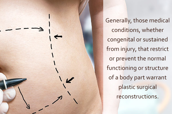 medical conditions that require a plastic surgery
