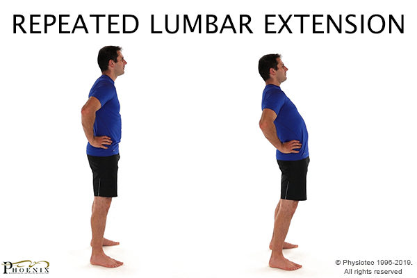 repeated lumbar extension for sciatic nerve pain
