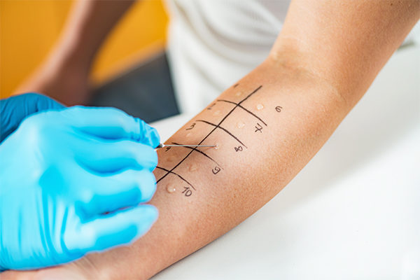 how is allergic rhinitis diagnosed?