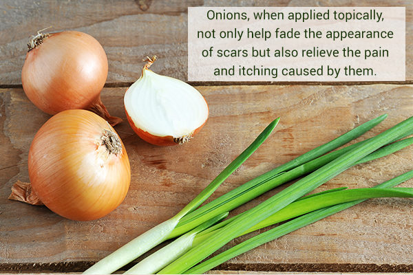 onions can help remove scars