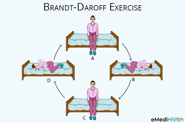 performing brandt-daroff exercises can help prevent vertigo