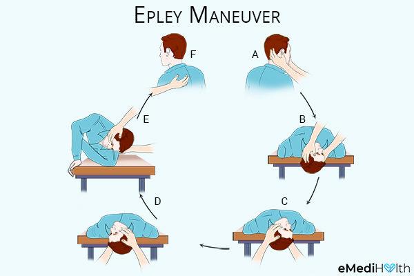 performing epley maneuver can help reduce vertigo