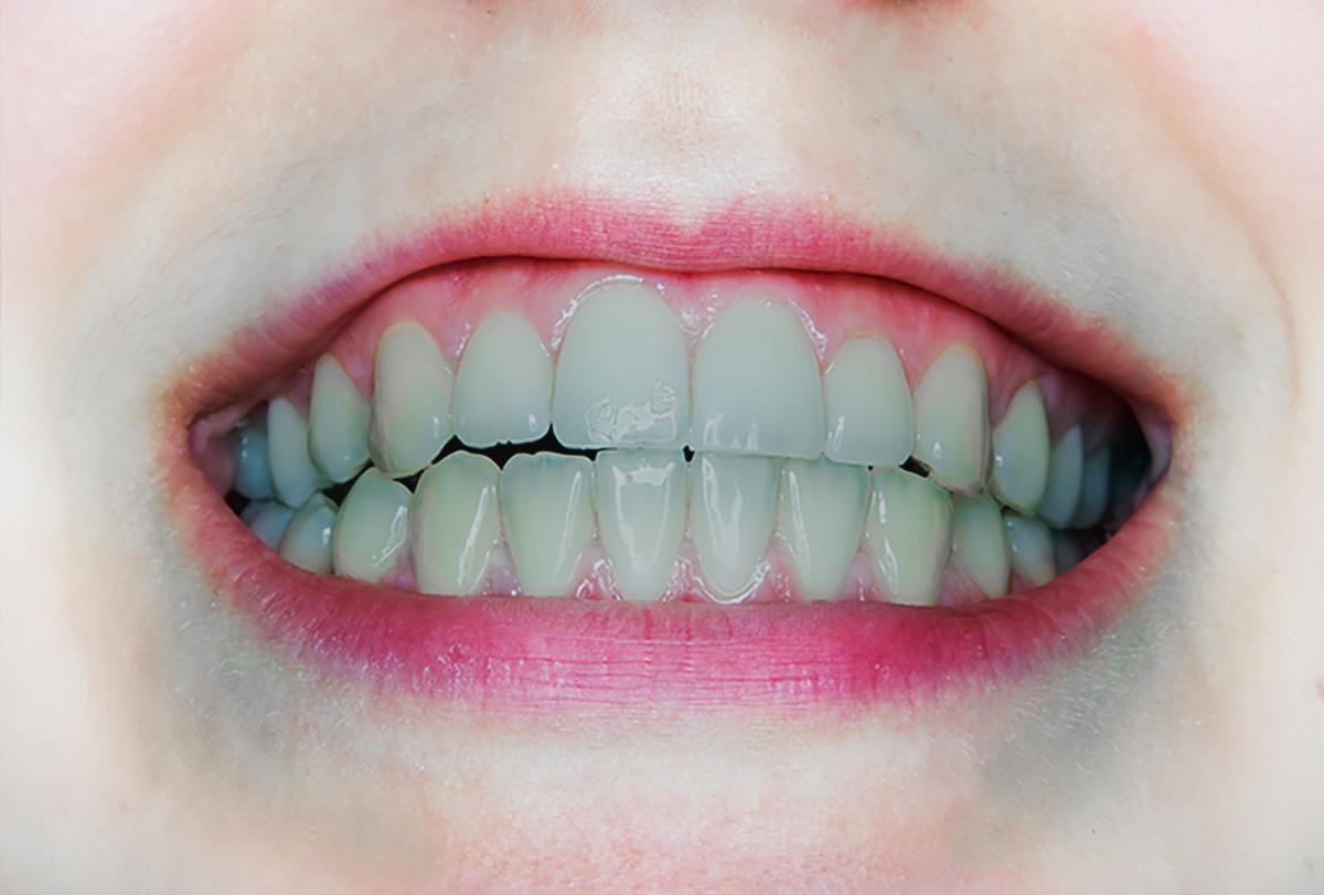 gray teeth