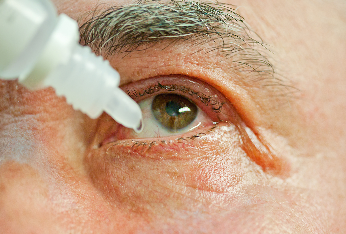 at-home remedies to soothe itchy eyes