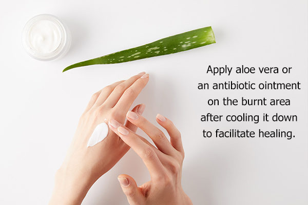 remedies for minor burns