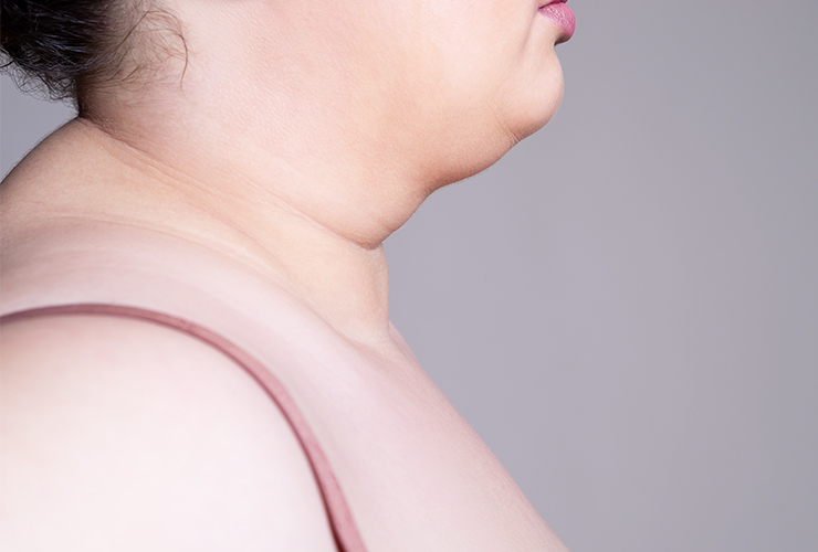 get rid of neck fat