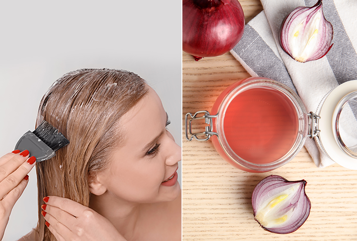 onion juice and honey for hair loss