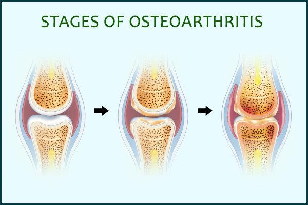 Osteoarthritis: Treatment, Diet, Causes, Symptoms, & More