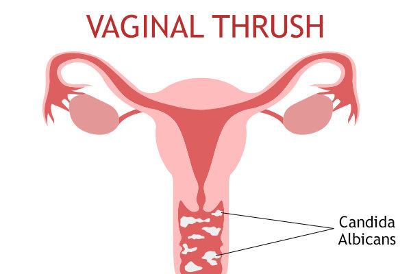 what are the reasons behind vaginal thrush?