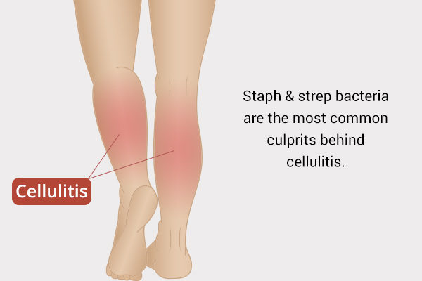 what causes cellulitis?