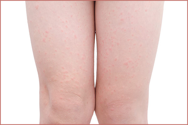 frequently asked questions about cellulitis