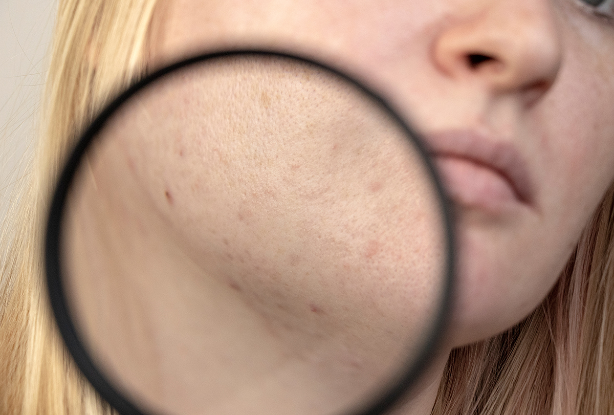 reasons for dark spots on face