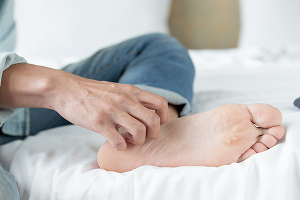 complications of untreated foot rashes