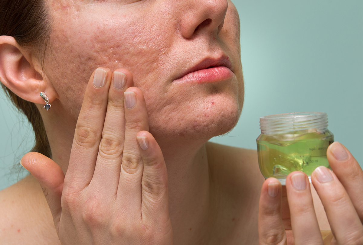 at-home remedies to fade scars