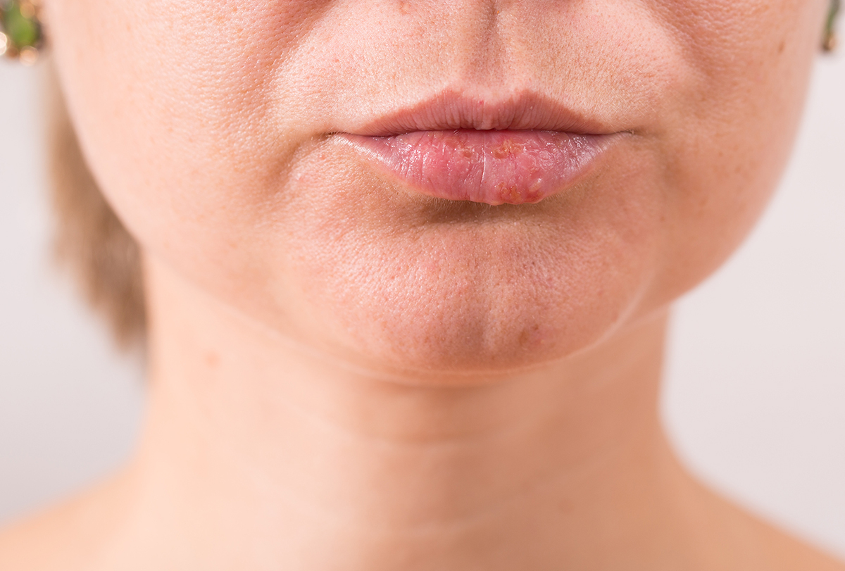 treating white bumps on lips