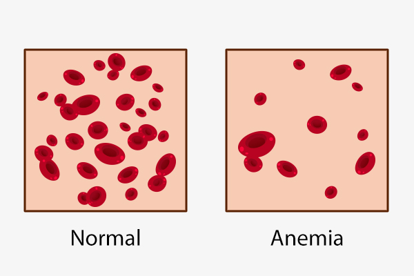 different types of anemia