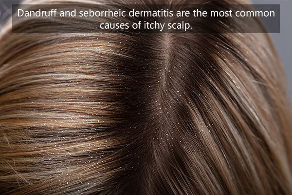 common causes of itchy scalp
