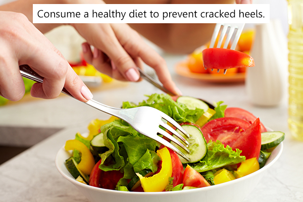 consuming a healthy diet may help in preventing cracked heels