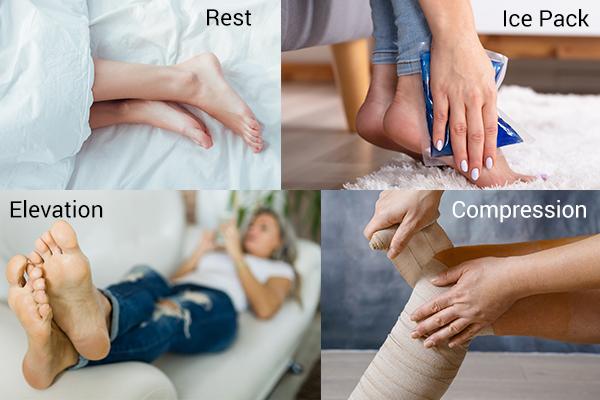 following RICE regimen may reduce foot pain