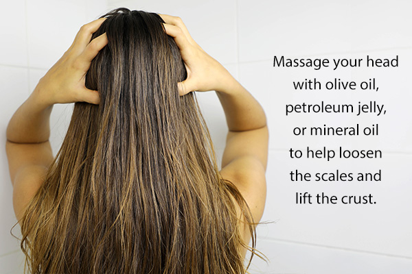 self-care treatment options for itchy scalp