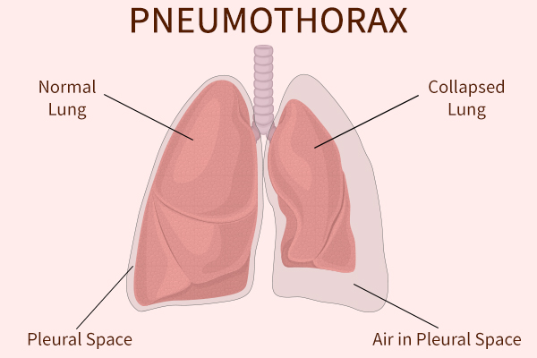 causes of pneumothorax
