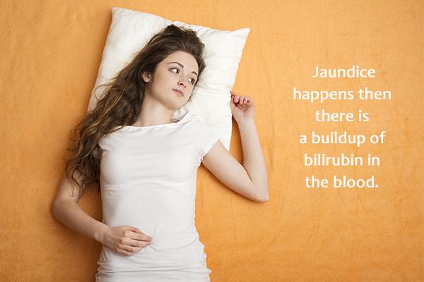 what causes jaundice?