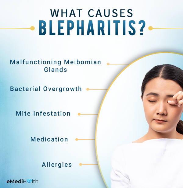 what are the causes behind blepharitis?