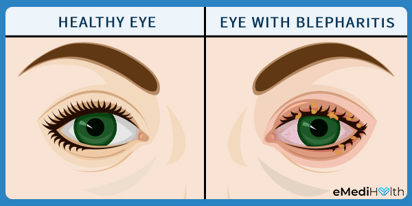 how is blepharitis diagnosed?