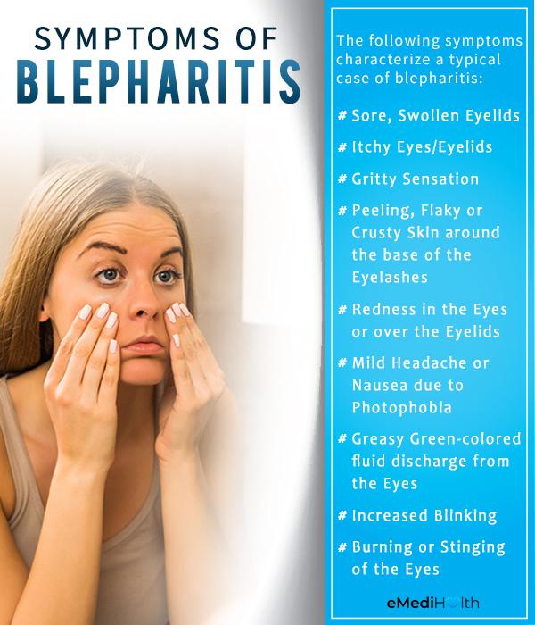symptoms of blepharitis