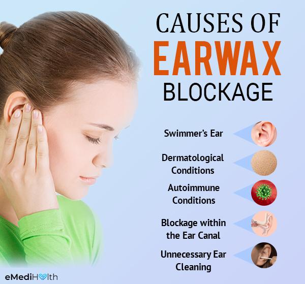 what causes earwax buildup?