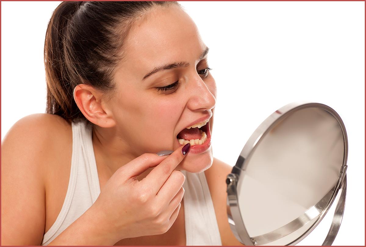 diastema (gap between teeth)