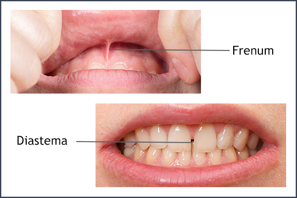 Diastema Closure With A Frenectomy | Best Dental in Houston, TX