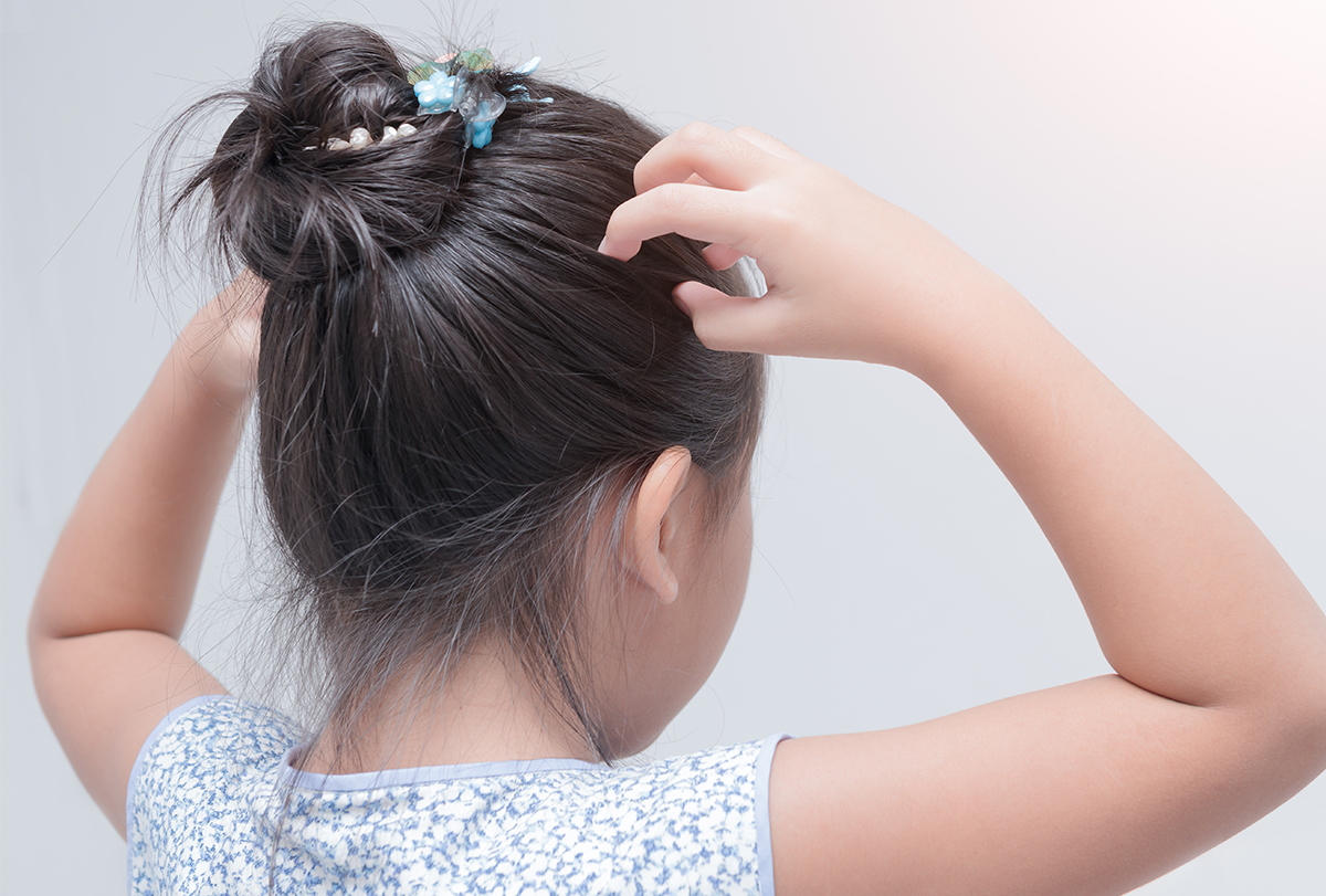 at-home remedies for head lice infestation