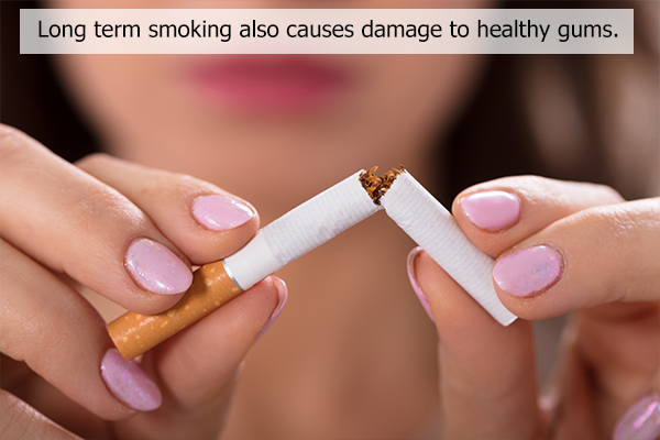 refrain from smoking to avoid tooth staining