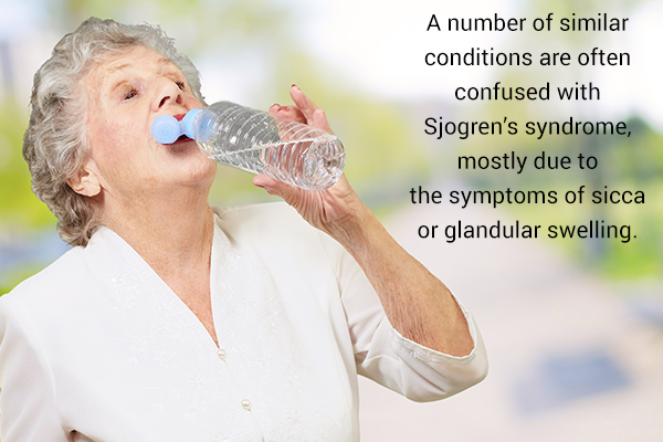other conditions often confused with sjogren's syndrome