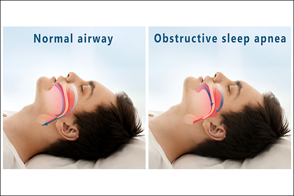 obstructive sleep apnea is most common and can be fatal