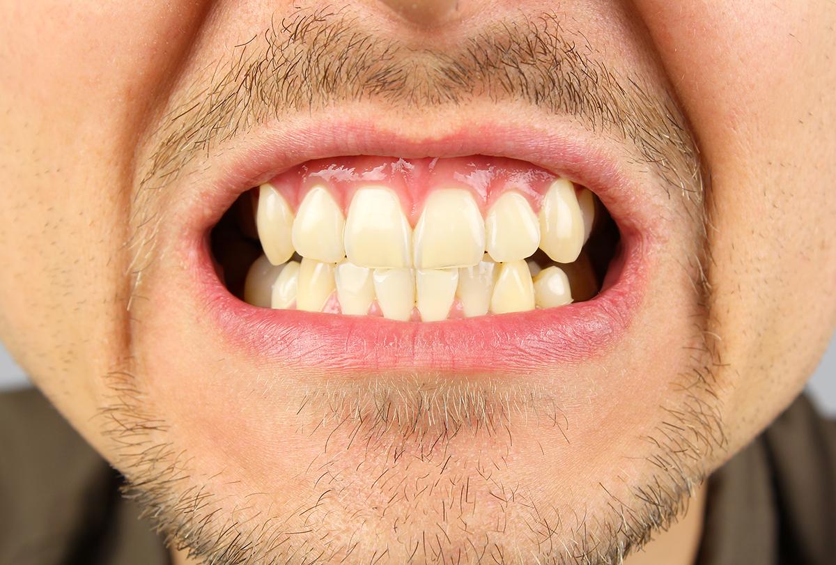 ways to manage teeth grinding (bruxism)