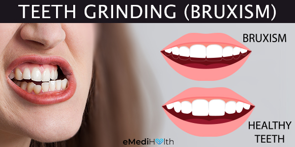 how is bruxism diagnosed?
