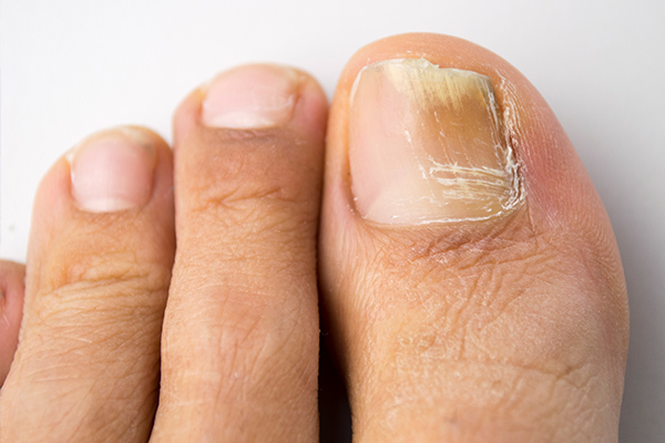 complications associated with athlete's foot