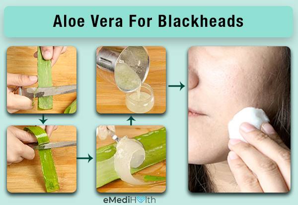 use aloe vera for curbing the growth of blackheads