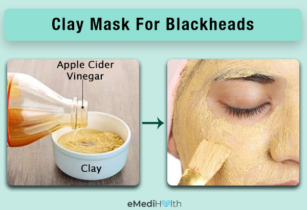 clay mask can help curb blackheads
