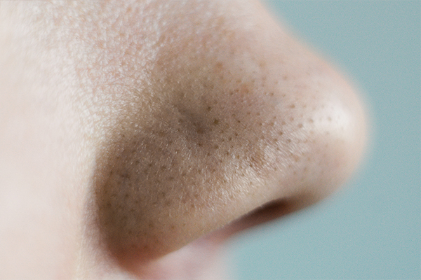 expert opinions on blackheads