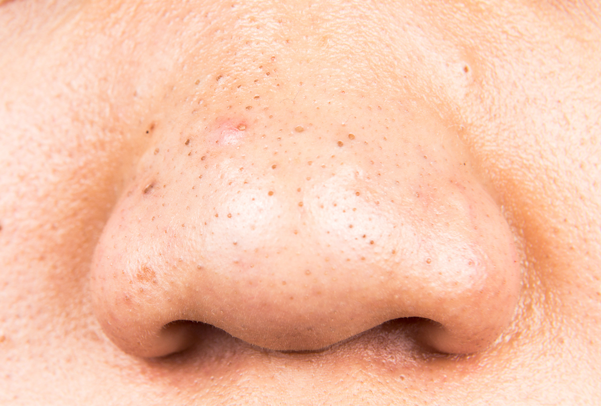 at-home remedies for blackheads